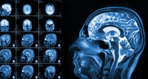 Different views of MRI of the human brain